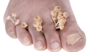 funghi-piedi
