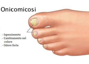 onicomicosi-500x360