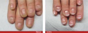 onicofagia-mani-31